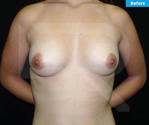 Breast Augmentation Surgery Dominican Republic