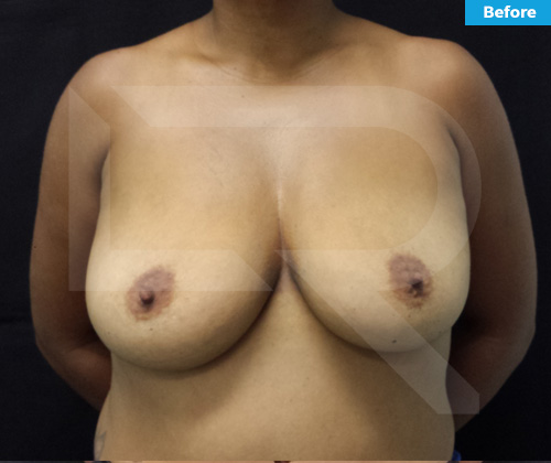 Breast Lift Surgery in Dominican Republic