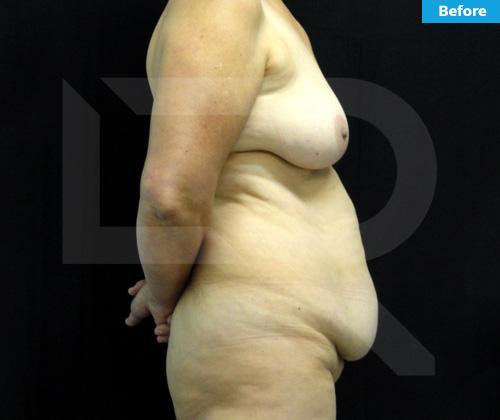 Tummy Tuck Surgery Dominican Republic