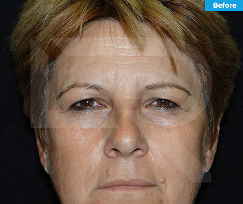 Brow lift Surgery inDominican Republic